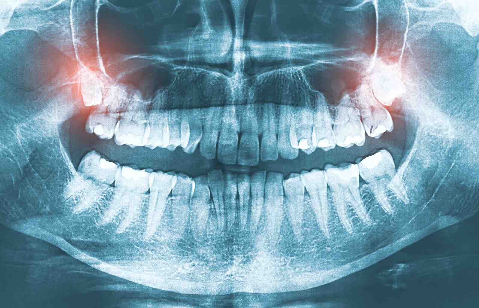 Wisdom teeth and tooth extractions at Bellaire's Bright Value Dental.