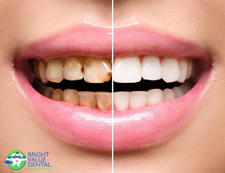 Houston Dentist General Dentistry