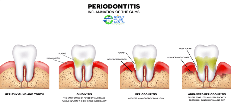 houston-periodontist-information